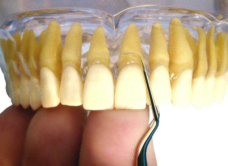 Application of American Eagle Gracey Deep Pocket Curette anterior maxillary