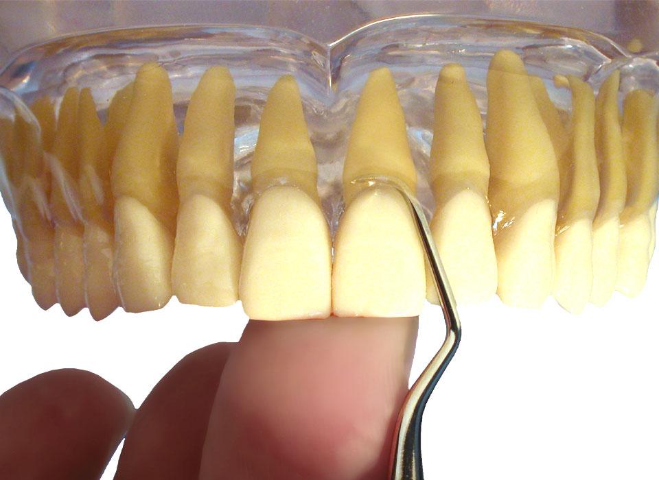 Application of American Eagle Gracey Curette anterior maxilla