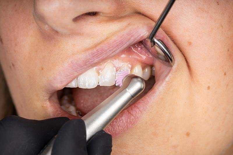 NSK polishing prophy angle FX57M with polishing cup and paste as well as mouth mirror in the mouth of a patient